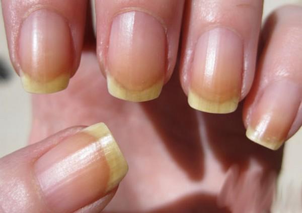 boli ale articulației unghiilor